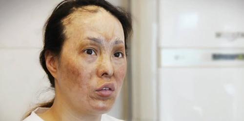 2 bà mẹ có gương mặt bị hủy hoại tìm lại nhan sắc - 1
