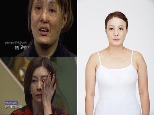 2 bà mẹ có gương mặt bị hủy hoại tìm lại nhan sắc - 3