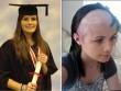 Nữ sinh bị u não vẫn tốt nghiệp loại ưu