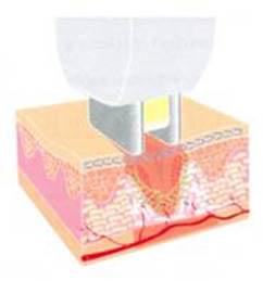 Trẻ hóa làn da toàn diện bằng chương trình điều trị Triniti - 2