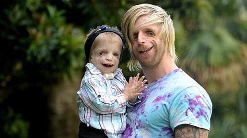 Chàng trai có khuôn mặt biến dị truyền cảm hứng cho người bệnh - 1