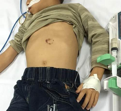 Ngã xe đạp, cháu bé 7 tuổi bị vỡ tụy - 1