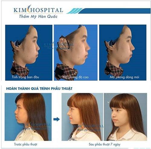 Nâng mũi bị biến chứng phải xử lý như thế nào? - 2
