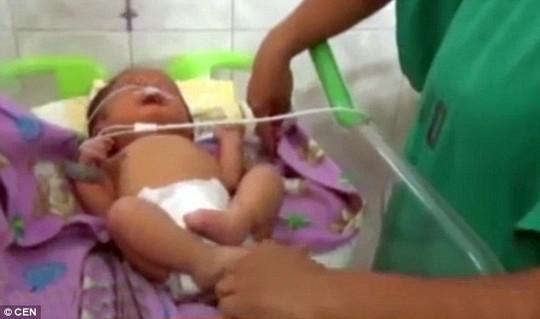 Bé sơ sinh có lỗ mũi như chiếc ống nhỏ - 1