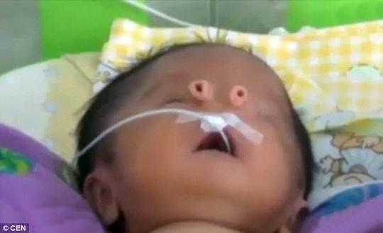 Bé sơ sinh có lỗ mũi như chiếc ống nhỏ - 2