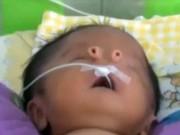 Sức khỏe đời sống - Bé sơ sinh có lỗ mũi như chiếc ống nhỏ
