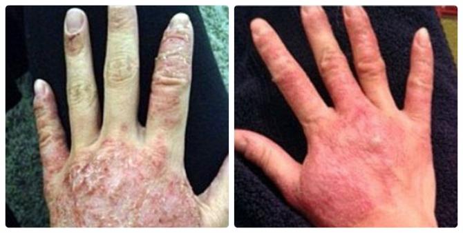 Thiếu nữ bị bong tróc da khắp người sau khi nâng ngực - 4