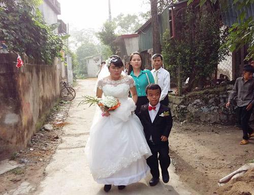 """Đám cưới cổ tích của """"chàng lùn"""" và cô gái mù - 1"""