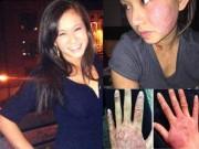 Sức khỏe đời sống - Thiếu nữ bị bong tróc da khắp người sau khi nâng ngực