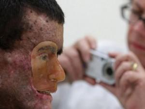 Phi thường - kỳ quặc - Những chứng bệnh hiếm gặp nhất trên thế giới