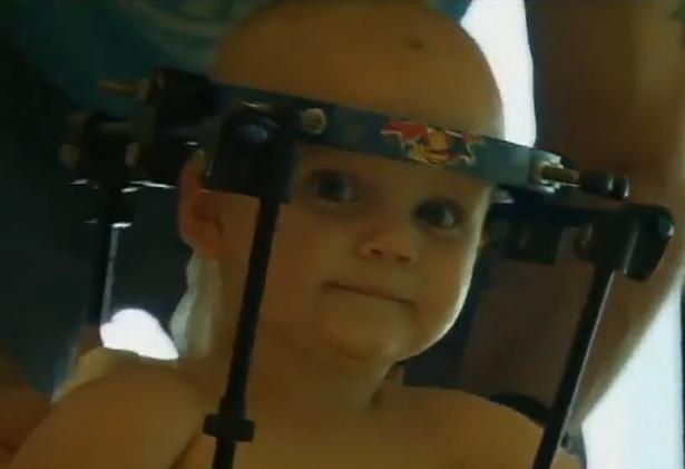 Video: Sức sống thần kỳ của cậu bé được nối lại đầu - 1