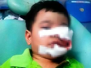 Tin tức trong ngày - Bé trai bị chó cắn nát mặt, phải khâu 200 mũi