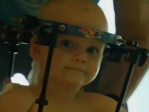 Video: Sức sống thần kỳ của cậu bé được nối lại đầu