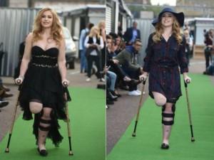Nữ sinh 9X cụt chân lần đầu sải bước trên sàn catwalk