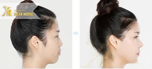 3 ưu điểm nổi bật giúp nâng mũi S-line được yêu thích - 1