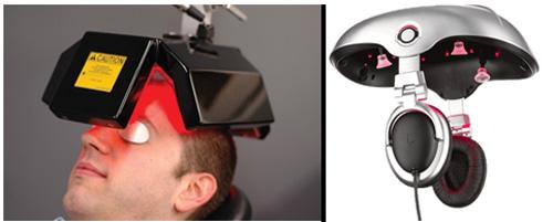 Khám phá 3 công nghệ ngăn rụng tóc hiện đại tại Pháp - 1