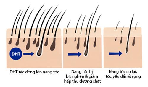 Khám phá 3 công nghệ ngăn rụng tóc hiện đại tại Pháp - 4