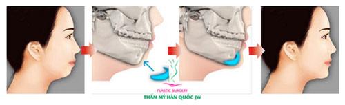 Giải pháp hiệu quả cho chiếc cằm ngắn kém duyên - 5