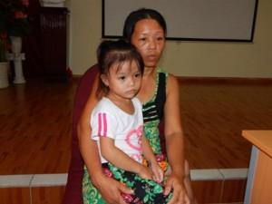 Uống nhầm nước tro tàu, bé gái 4 tuổi bị bỏng thực quản