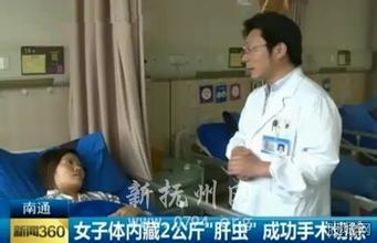 Bác sĩ kinh hãi lấy 2kg trứng sán từ gan người phụ nữ - 1