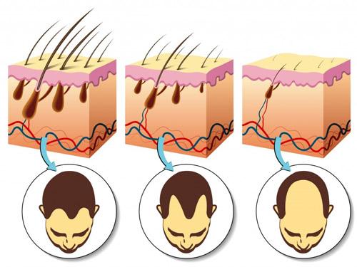 Rụng tóc đã lâu liệu có kích thích tóc mọc trở lại? - 1
