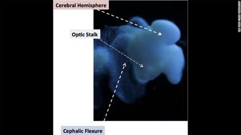 """Não nhân tạo lớn gần bằng não người, giúp điều trị """"bá bệnh"""" - 1"""