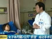 Bác sĩ kinh hãi lấy 2kg trứng sán từ gan người phụ nữ