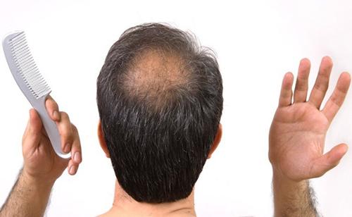 Tóc hói, tóc rụng có thể khắc phục chỉ với lô hội - 2