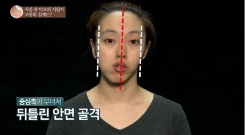 """Cô gái xấu xí xinh như mỹ nữ nhạc Hàn sau """"dao kéo"""" - 1"""