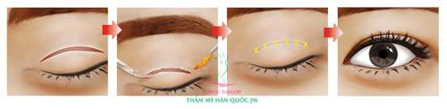 Phẫu thuật mắt to và những điều chưa biết - 3