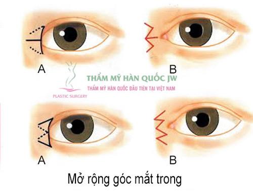 Phẫu thuật mắt to và những điều chưa biết - 4