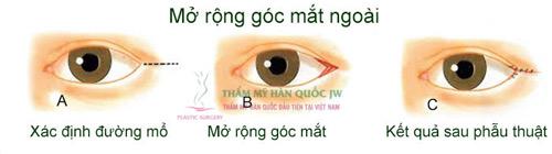 Phẫu thuật mắt to và những điều chưa biết - 5