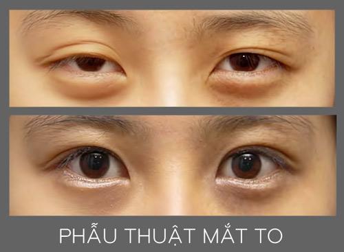 Phẫu thuật mắt to và những điều chưa biết - 8