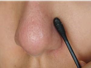 Chăm sóc da - Sạch da, hết mụn đầu đen với 7 giải pháp tại nhà