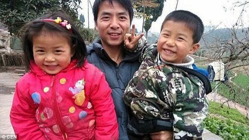 Cảm động hai em bé hiến da đầu cứu cha bỏng nặng - 2