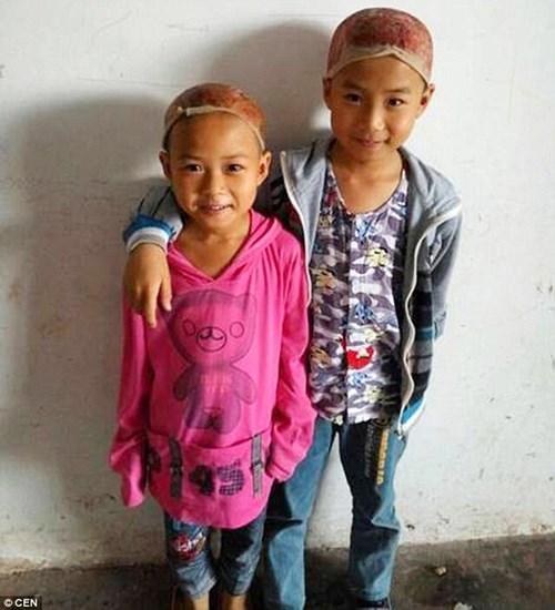 Cảm động hai em bé hiến da đầu cứu cha bỏng nặng - 3