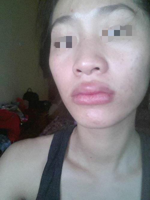 Vẹo mũi, lệch cằm, môi phù vì tiêm chất làm đầy - 5