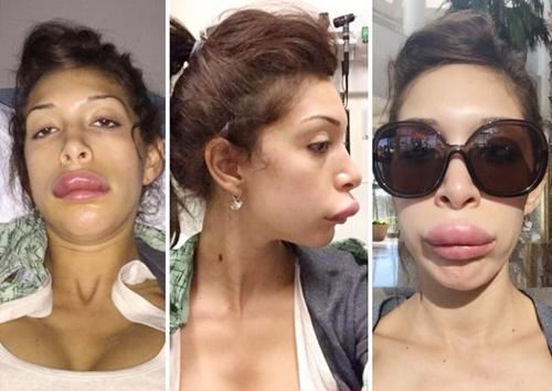 Vẹo mũi, lệch cằm, môi phù vì tiêm chất làm đầy - 6