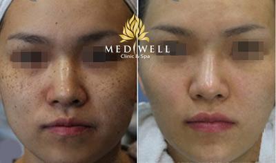 Mediwell Clinic and Spa ưu đãi khủng tôn vinh phụ nữ Việt - 4