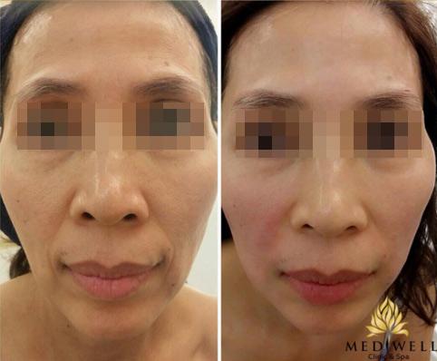 Mediwell Clinic and Spa ưu đãi khủng tôn vinh phụ nữ Việt - 5