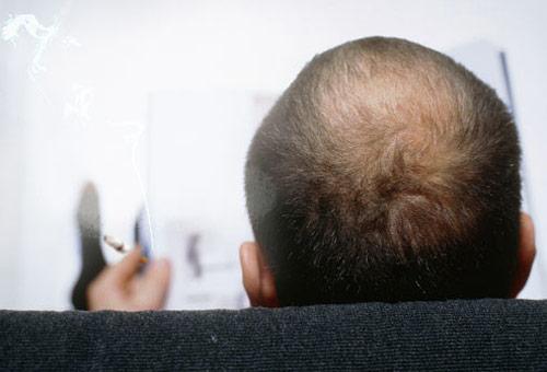 Những thói quen gây rụng tóc, hói đầu ở nam giới - 3