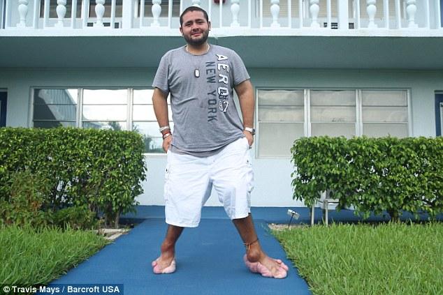 """Chàng trai có bàn """"chân voi"""" khổng lồ - 1"""