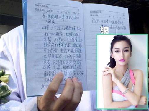 Huỳnh Hiểu Minh nói về nhan sắc gây ầm ĩ của Angelababy - 2