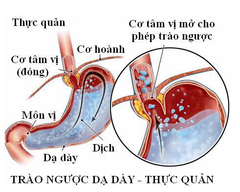 Dấu hiệu nhận biết bệnh trào ngược dạ dày thực quản - 1