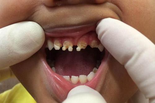 Rùng mình hàm răng của trẻ nghiện nước ngọt có ga - 1