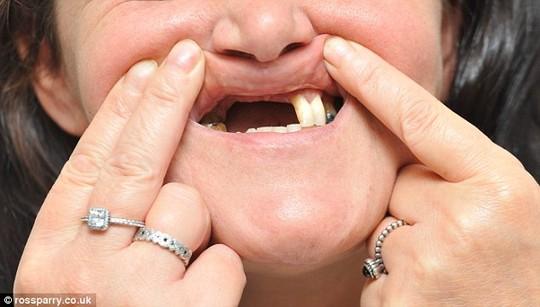"""Mất hàm răng cửa vì tẩy trắng răng ở nha sĩ """"dởm"""" - 2"""