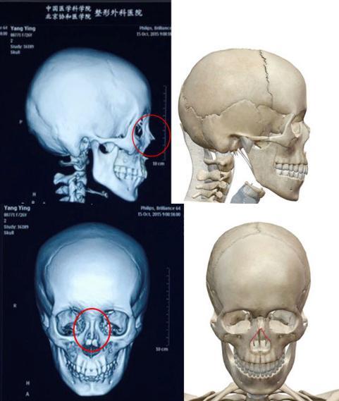 Lộ phim X-quang có vật thể lạ trong mũi Angelababy - 2