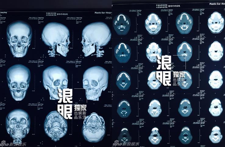Lộ phim X-quang có vật thể lạ trong mũi Angelababy - 3