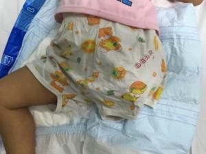 Sức khỏe đời sống - Thương tâm, bé gái 2 tuổi bị máy xát gạo cán cụt chân