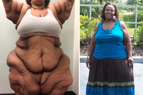 Choáng với bộ da thừa nặng 1 tạ sau khi giảm cân - 1